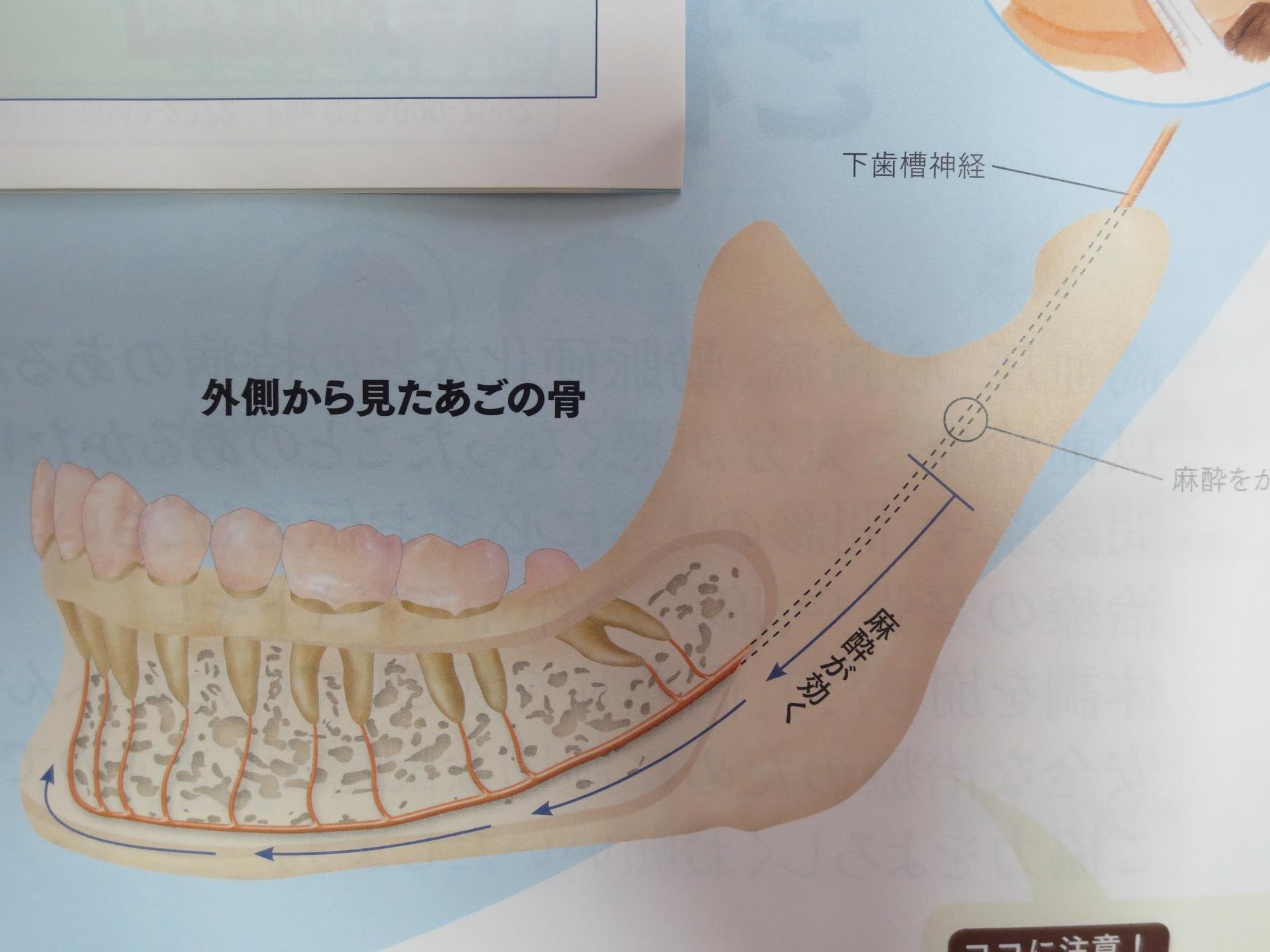 時間 歯医者 麻酔