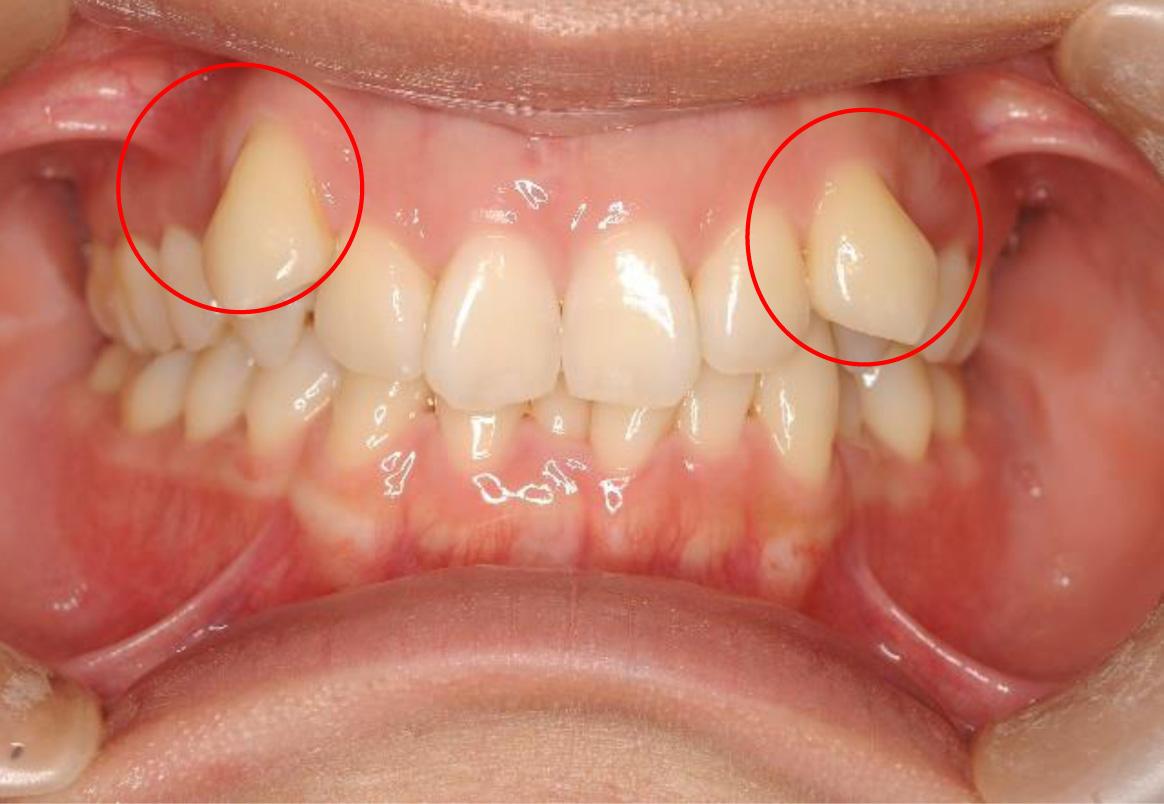八重歯について-1