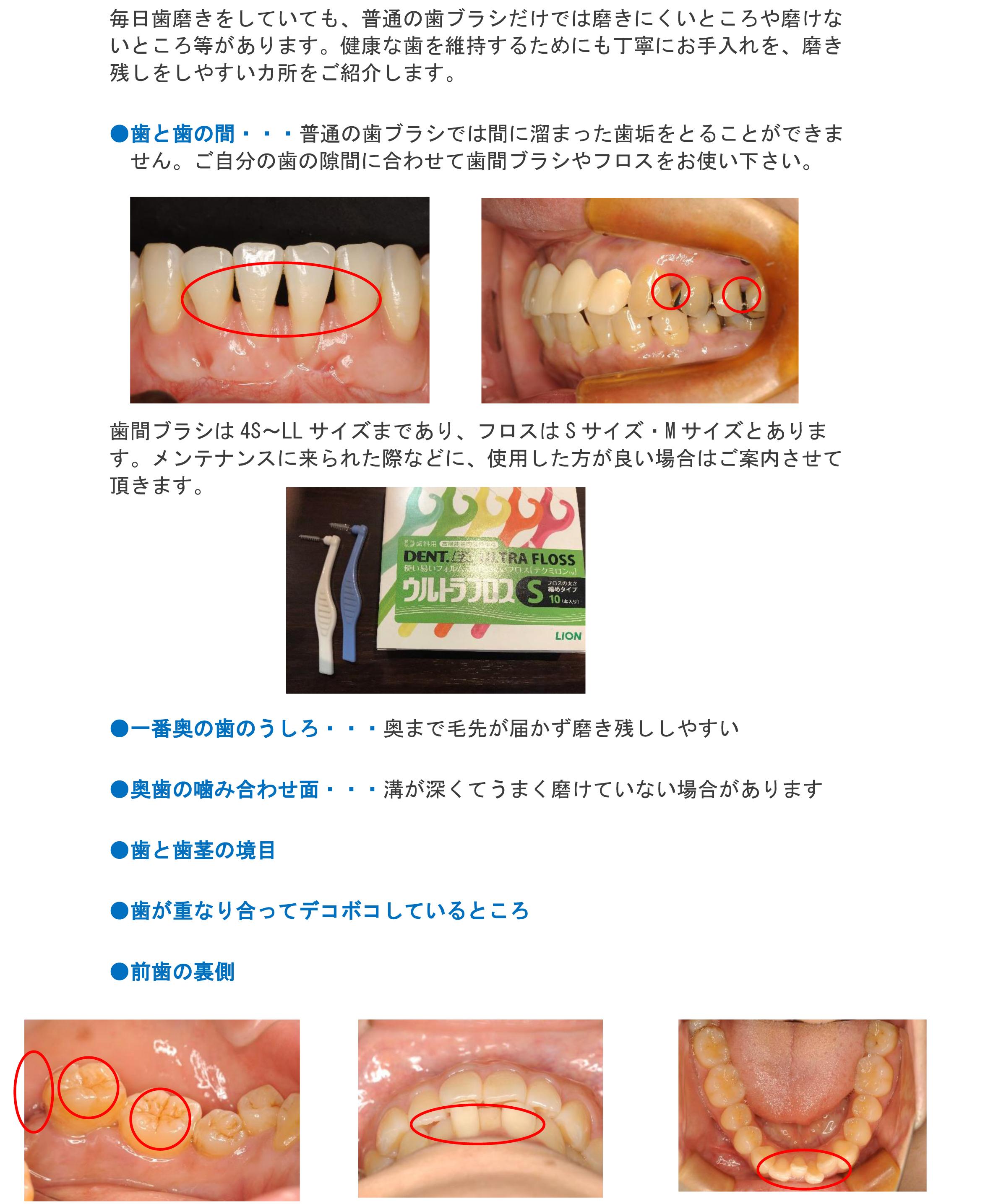 磨きにくい歯のお手入れ方法-30_edited-1