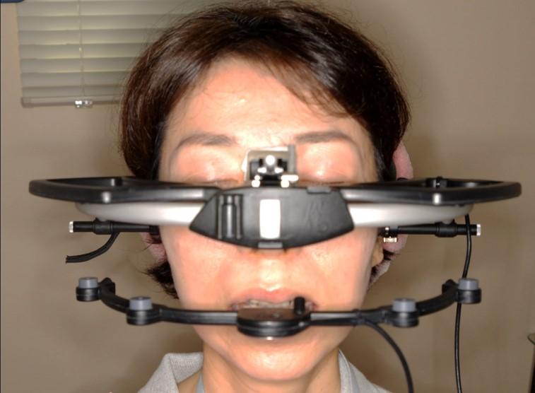 下顎運動記録装置