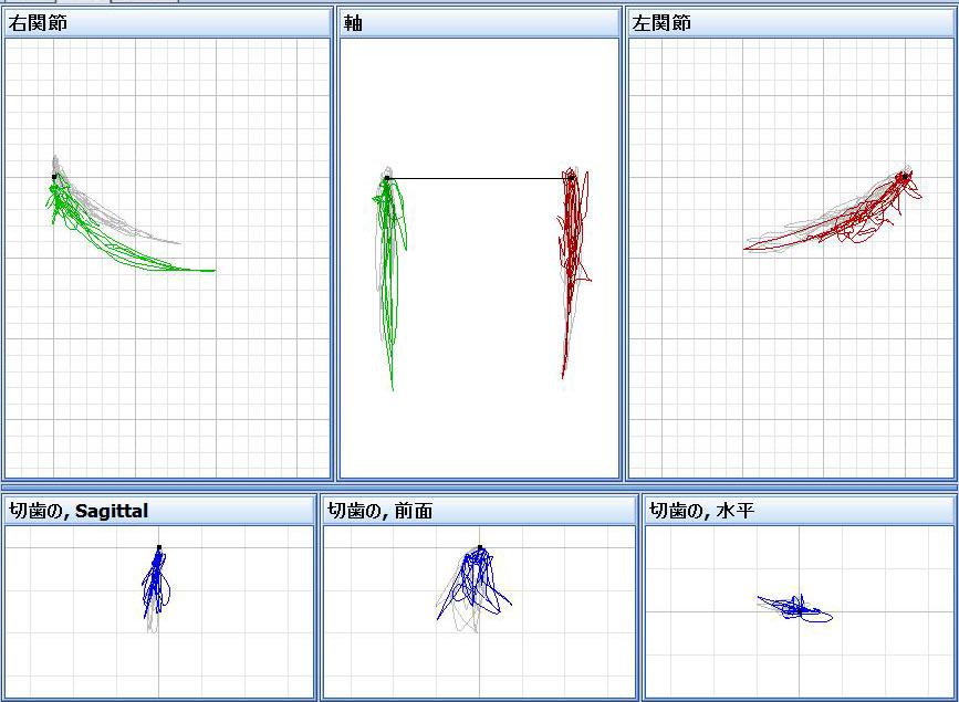 各種下顎運動の描記